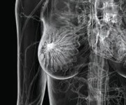 Prevenzione - Mammografia