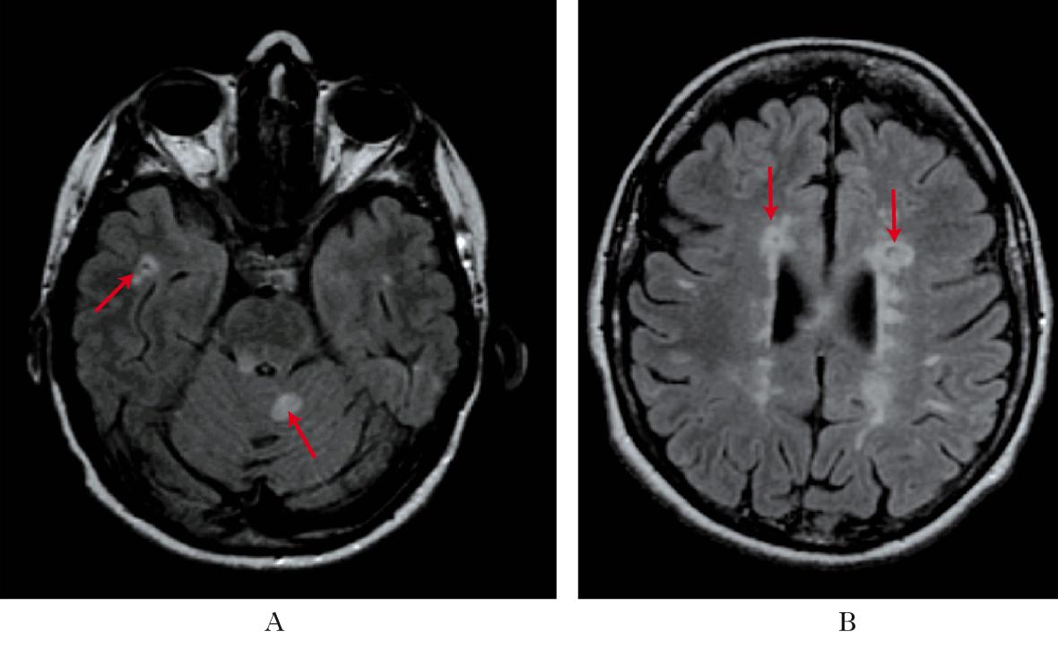 Diagnosi sbagliate di sclerosi multipla: quali sintomi ...